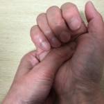 第3・4指の先が「労宮」